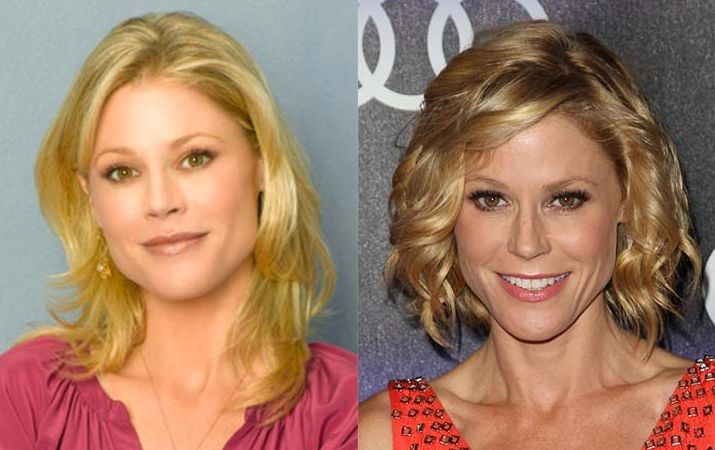 Julie Bowen before and after plastic surgery 06 ...