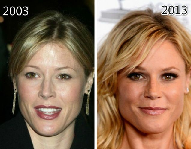 Julie Bowen Before And After Plastic Surgery 08
