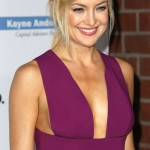Kate Hudson after Plastic surgery 01