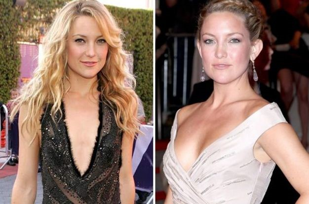 Kate Hudson before and after Plastic surgery