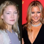 Kate Hudson before and after Plastic surgery 02