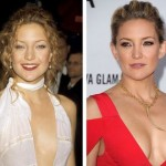 Kate Hudson before and after Plastic surgery 03