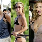 Kate Hudson before and after Plastic surgery 04
