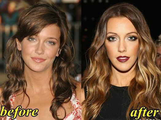 Katie Cassidy before and after plastic surgery