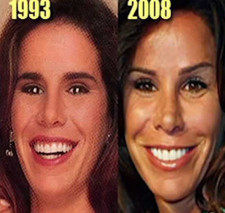Melisa Rivers before and after plastic surgery