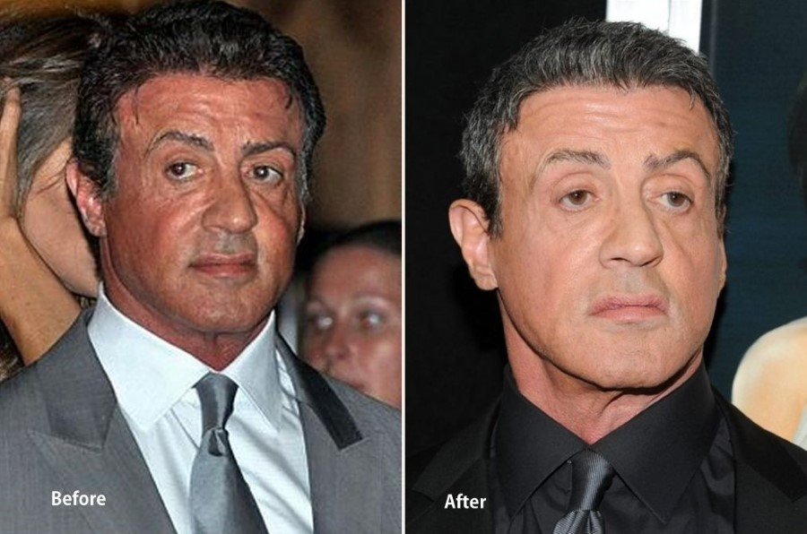 Sylvester Stallone Plastic Surgery Corrected Sagging Face