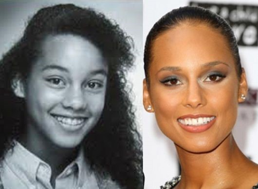 Alicia Keys before and after plastic surgery