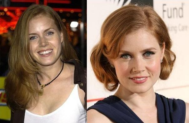 Amy Adams before and after plastic surgery