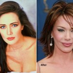 hunter tylo before and after plastic surgery 02