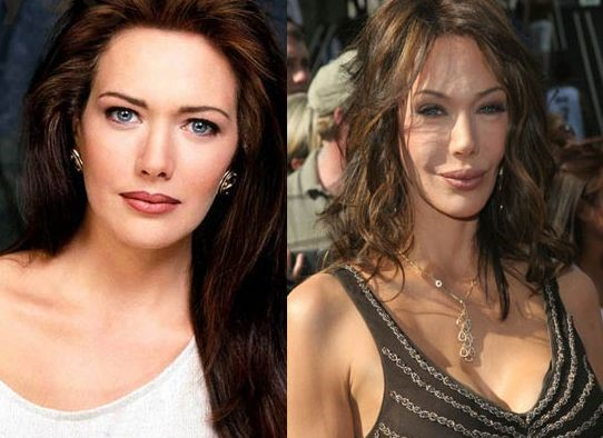 hunter tylo before and after plastic surgery 03