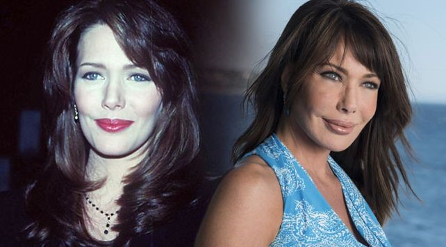 Hunter Tylo before and after plastic surgery