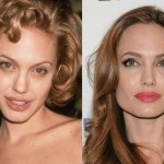 Angelina Jolie before and after plastic surgery 04