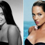 Angelina Jolie before and after plastic surgery 05