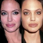 Angelina Jolie before and after plastic surgery 08