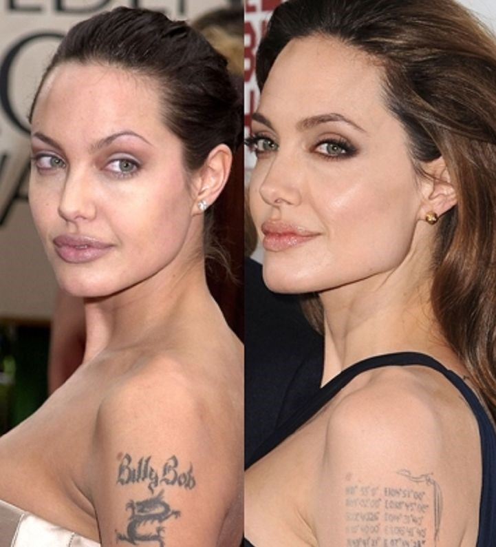 Angelina Jolie before and after plastic surgery and removing tatoo