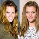 Brooklyn Decker before and after plastic surgery 02