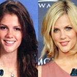 Brooklyn Decker before and after plastic surgery 03