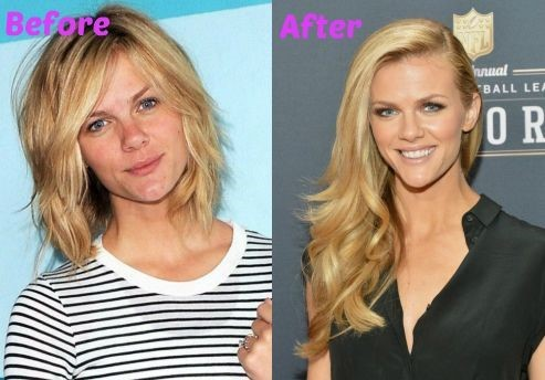 Brooklyn Decker before and after plastic surgery