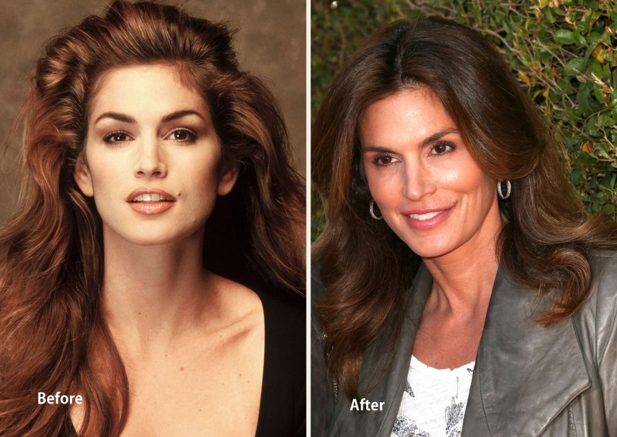 Cindy Crawford before and after plastic surgery