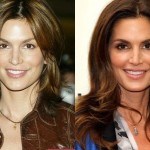 Cindy Crawford before and after plastic surgery 05