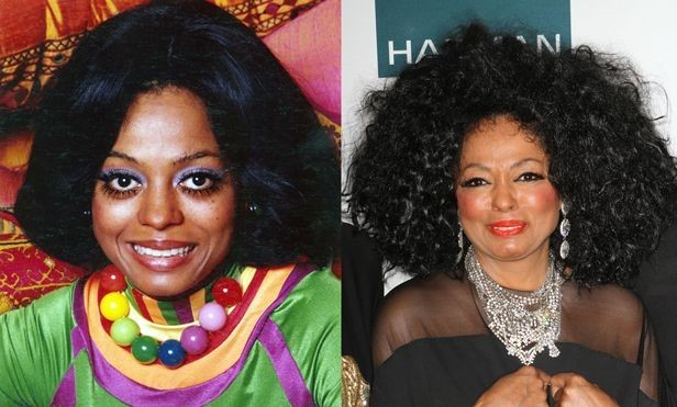 Diana Ross before and after plastic surgery