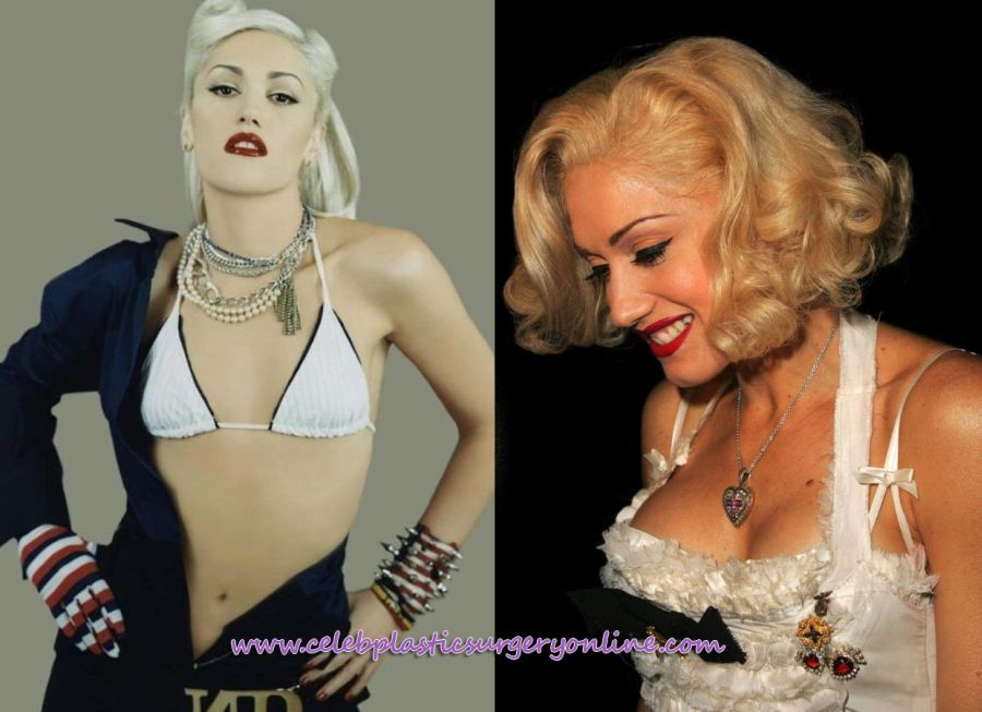 Gwen Stefani plastic surgery enhancements