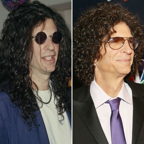 Howard Stern before and after nose job
