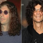 Howard Stern before and after plastic surgery 01