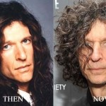 Howard Stern before and after plastic surgery 04
