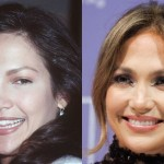 Jennifer Lopez before and after plastic surgery 01