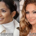 Jennifer Lopez before and after plastic surgery 02