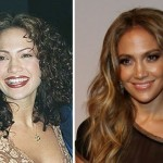 Jennifer Lopez before and after plastic surgery 03