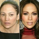Jennifer Lopez before and after plastic surgery 04