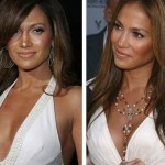 Jennifer Lopez before and after plastic surgery 06