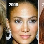 Jennifer Lopez before and after plastic surgery 07