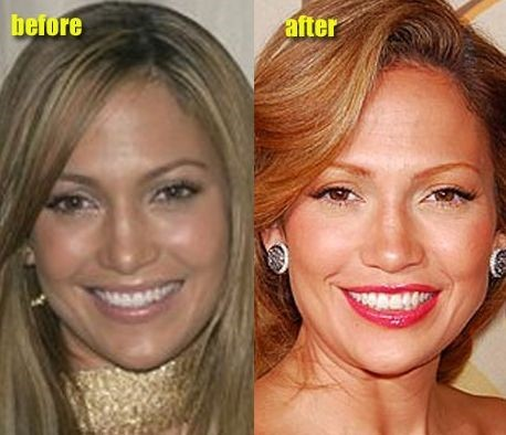 Jennifer Lopez before and after plastic surgery 08