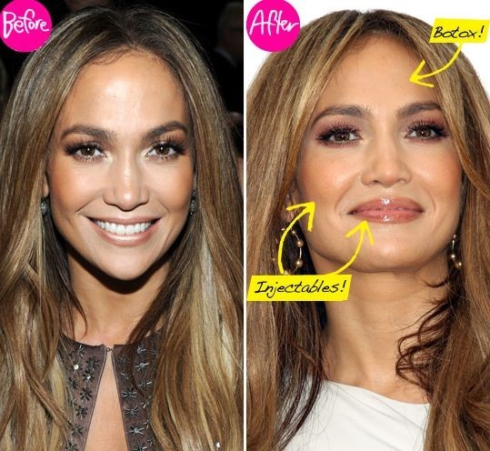 Jennifer Lopez before and after using botox 01