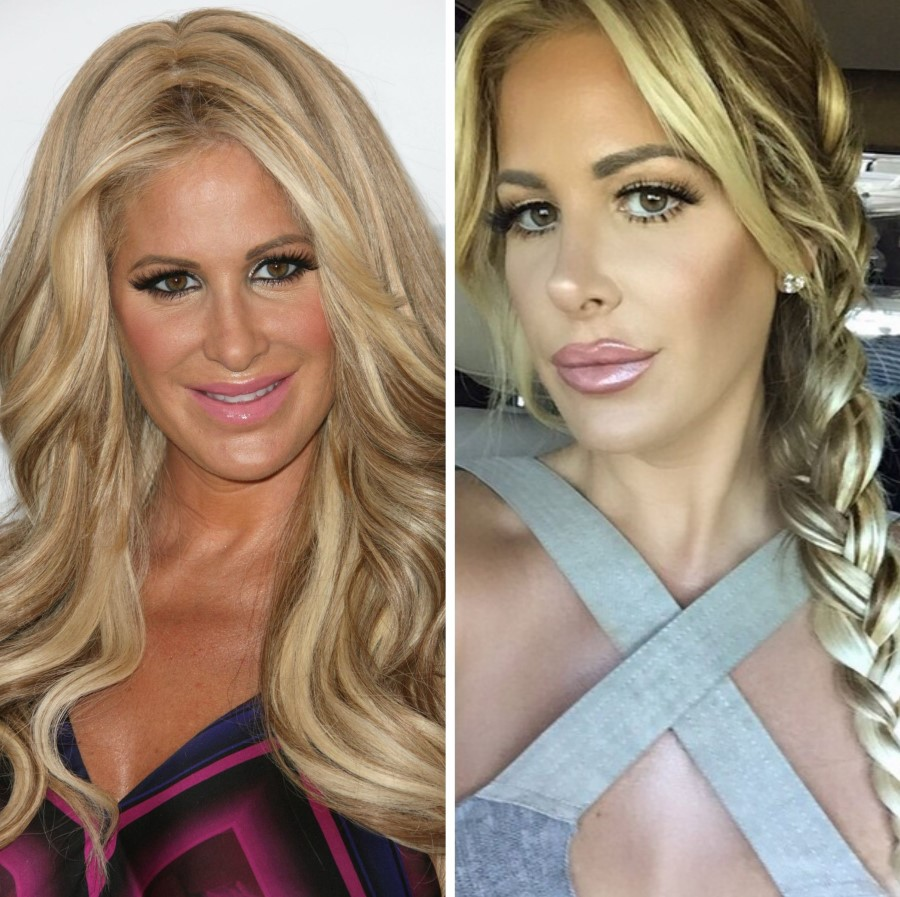 Kim Zolciak before and after nose job