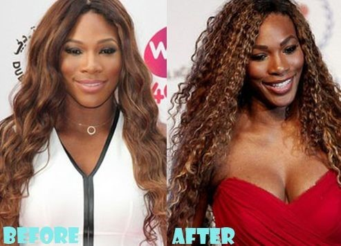 Serena Williams Before And After Plastic Surgery 07