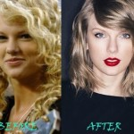 Taylor Swift before and after plastic surgery 01
