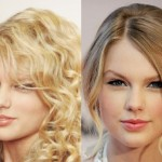 Taylor Swift before and after plastic surgery 03