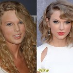 Taylor Swift before and after plastic surgery 04