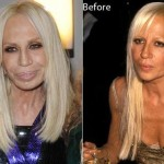 Donatella Versace after and before plastic surgery