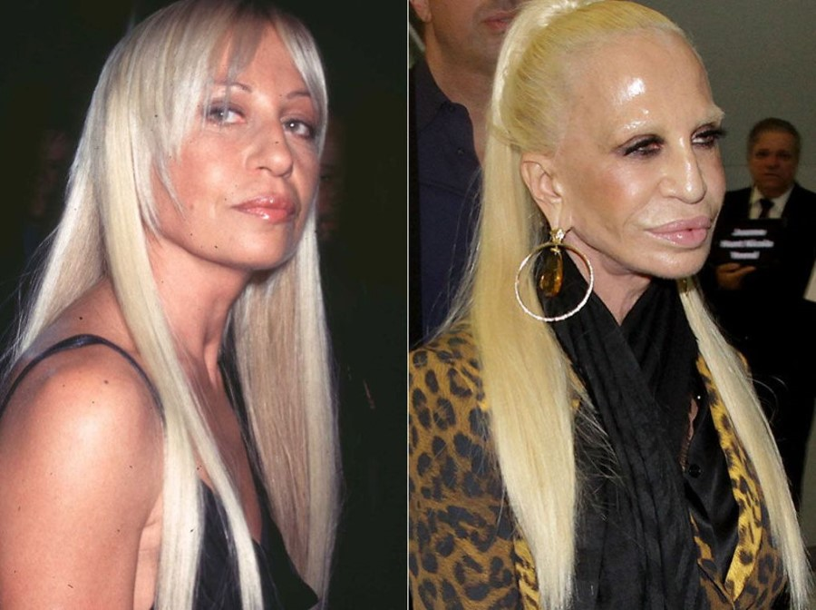 Bilderesultat for plastic surgery that went bad for regular people