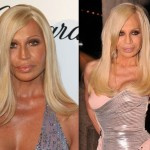 Donatella Versace before and after plastic surgery 08