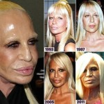 Donatella Versace plastic surgery transformations 02
