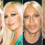 Donatella Versace plastic surgery transformations