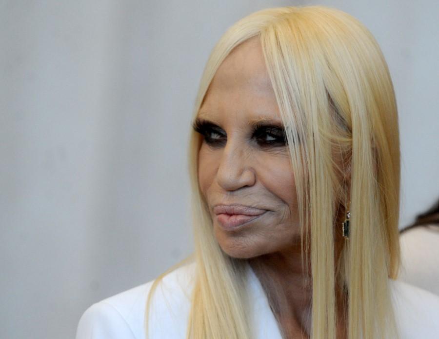 Donatella Versace Total Plastic Surgery Disaster