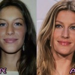 Gisele Bundchen before and after plastic surgery