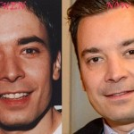 Jimmy Fallon before and after plastic surgery 01